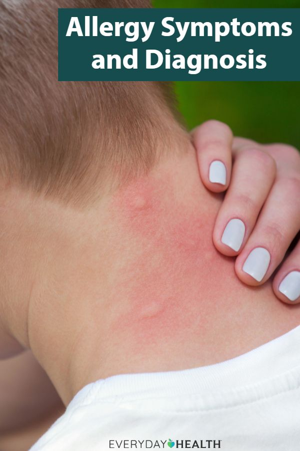 Allergy Symptoms and Diagnosis | Health and Wellness in 2019