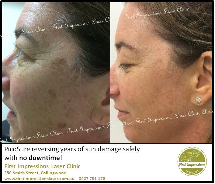 A fantastic example of how effective the new PicoSure laser is at repairing sun damage!  The team at First Impressions love seeing these results especially when there is no downtime for the clients at all!