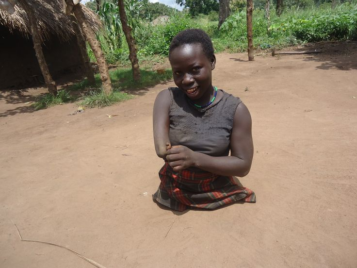 Reida is een meisje van 13 jaar uit een klein dorpje in de buurt van Yei, Zuid-Soedan. Ze werd geboren zonder benen en uit schaamte hielden de ouders haar altijd binnen. De afgelopen maanden kreeg het gezin begeleiding van de revalidatiewerker. Reida is geholpen om haar handicap te accepteren en langzamerhand krijgen de ouders meer waardering voor hun dochter. Reida helpt nu mee op het land en dankzij de begeleiding kan zij volgend jaar misschien naar school.