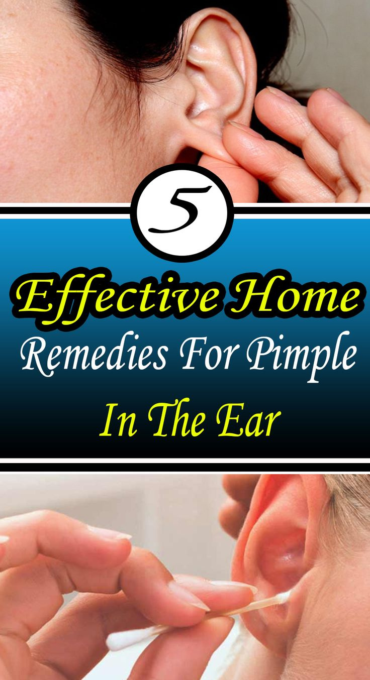 5 #Effective Home Remedies For Pimple In The Ear#Health