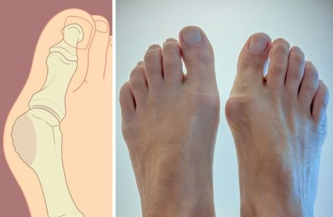 """Vida sin """"juanetes"""": una forma de librarte de ellos en 2 meses. La deformación del hueso en el dedo gordo del pie, es un..."""