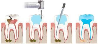 If you have got a nerve infection in the tooth then it is the right time to go for Root Canal Treatment procedure that would treat the infected area of the tooth.