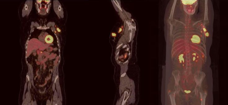 PET-CT Imaging in Breast Cancer Patients