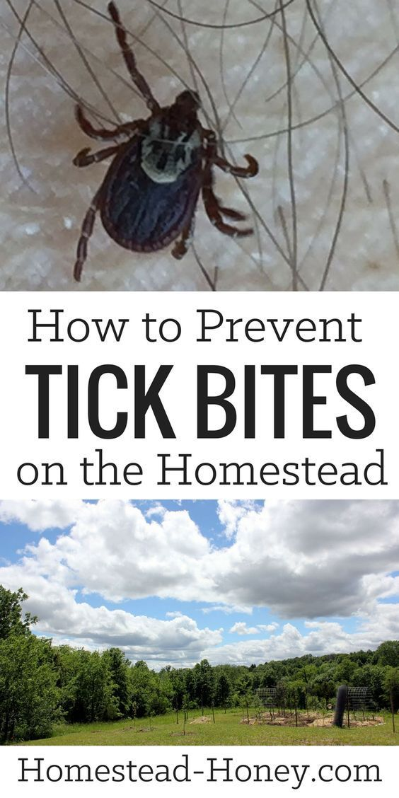 Are ticks a problem on your homestead? They used to be on ours, too. Until we starting implementing these three easy strategies for preventing tick bites.