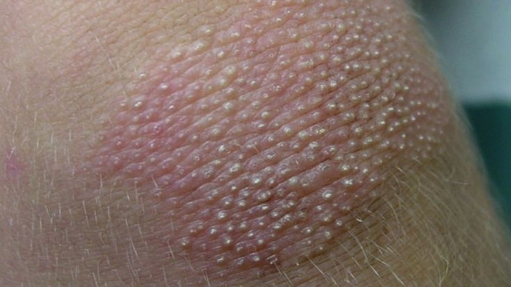 Cured a 4-year-old of Head-to-Toe Psoriasis (and how you can too) 2