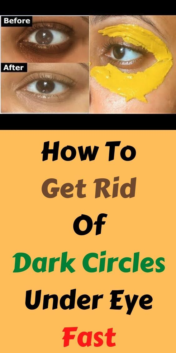 How To Get Rid Of Dark Circles Under Eye Fast. how to get ...