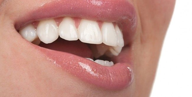 52 Best Images About Porcelain Veneers Thailand On