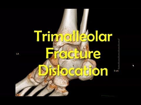 Trimalleolar Ankle Fracture Dislocation Reduction - YouTube
