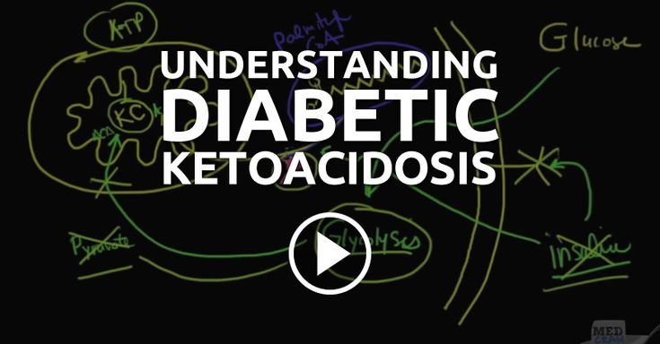 Dr. Roger Seheult gives a clear explanation with drawings of diabetic ketoacidosis, which accounts for 135,000 hospital admissions every year in the United States.