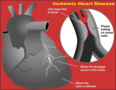 In the United States, 47,000 people die each year from secondhand smoke related ischemic heart disease.