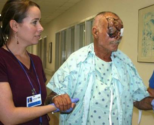 Miami Zombie Victim Gross But Interesting Medical