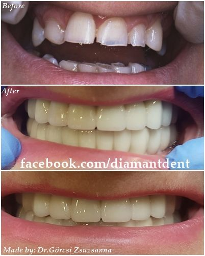New Smile, new life :) Before After Photo! Have a Bright smile! Dental Bridge and dental implants, Diamant Dent