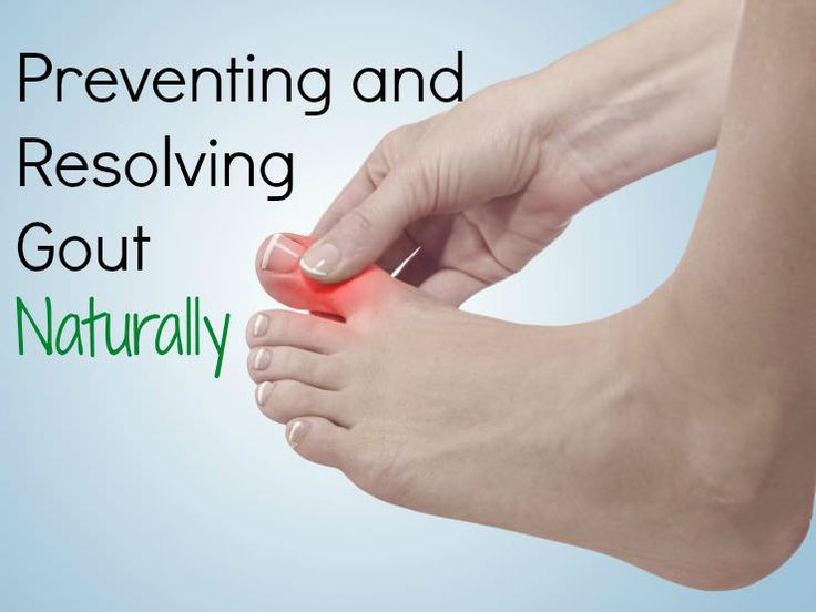 The causes of gout can be resolved naturally via diet modification and holistic anti-inflammatory measures.