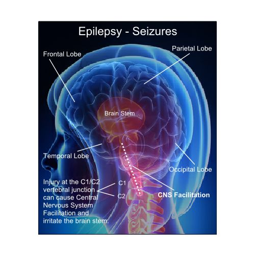 an analysis of epilepsy as a nervous system disorder Four primary research and one review article were used to complete this literature analysis  the nervous system(2006) epilepsy is  disorder, nervous system.