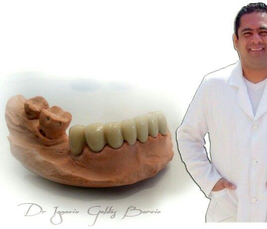 Centro Salud & Clinica Dental Jallalla  Whatsapp : + 56 9 84091574  Urgencias: 77495131 Iquique-Chile   La sonrisa es la magia que ilumina el rostro
