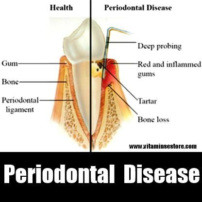 periodontal disease and treatment options Home » treatment options » treatment of gum disease treatment of gum disease people can assume that gum disease is a disease that can be contracted, like measles or hepatitis.