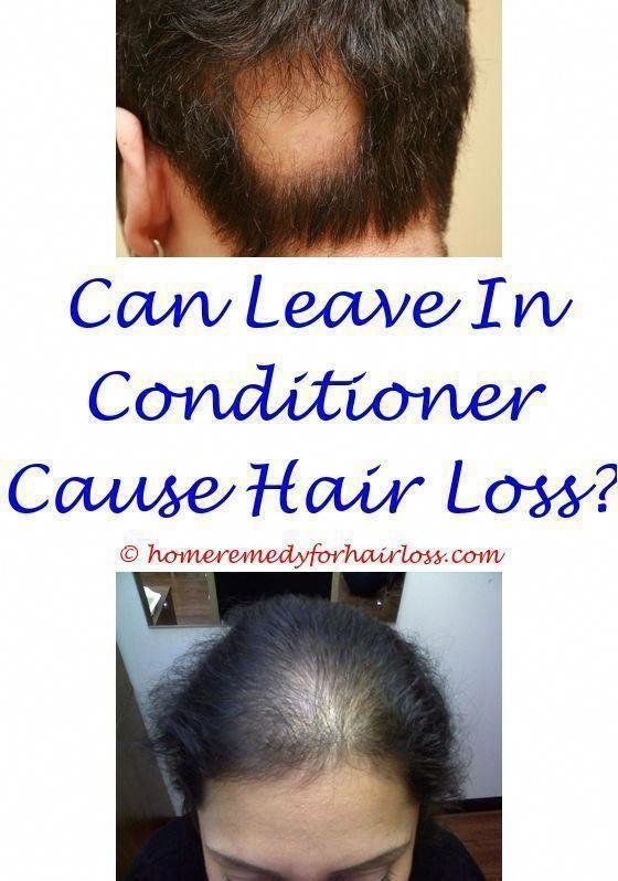 male hair loss cure 2015 - regenepure dr hair loss wella