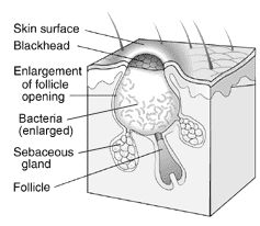 What Are Blackheads & Causes Of Blackheads | Acne Treatments