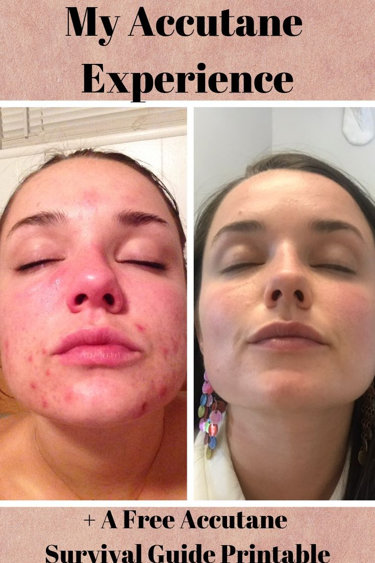 My Experience With Accutane With Before Afters Accutane Acne