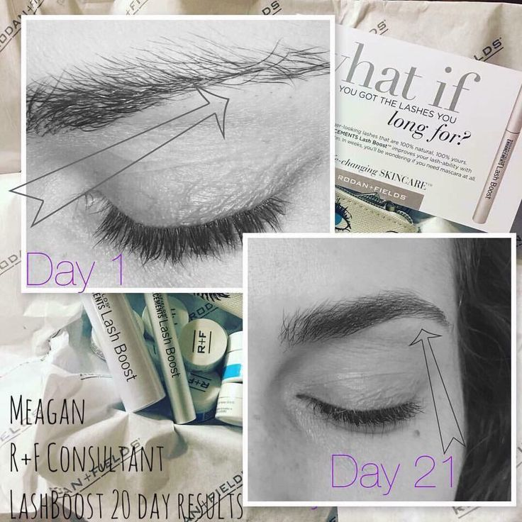 """Thin Eyebrows? LASH BOOST WORKS ON EYEBROWS TOO!  Throw out your brow pencils!!! Check out Meagan used Lash Boost on her brows and said this: """"No joke - this is my 3 week results with Rodan+Fields NEW PRODUCT! Before Lash Boost I needed to pencil my thinning eyebrows daily and look at the difference of 20 days!!! Darker looking & fuller looking ~ 100% ME.""""  Who is ready to try this new product?"""