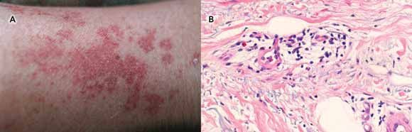 Leg Rashes in Adults Vasculitis | Purpuric rash on skin of lower leg. B: Skin biopsy of lower leg ...