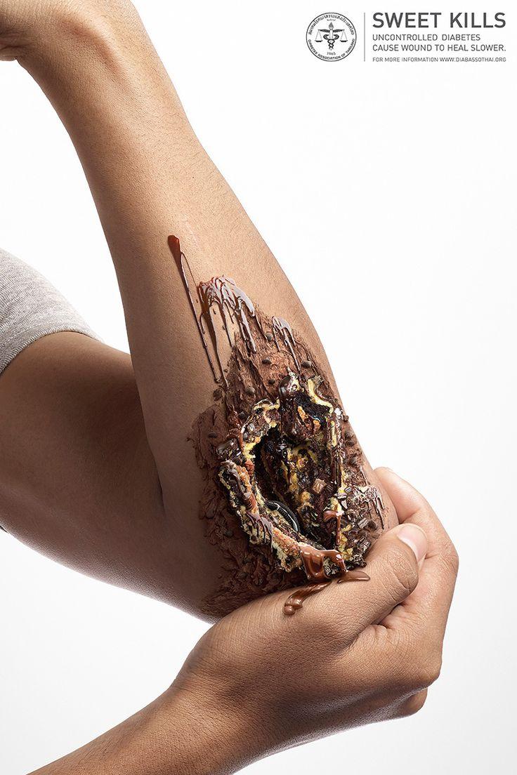 Sweet Kills - feridas feitas de sorvete e chocolate alertam para riscos da…