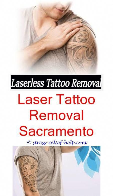 Does Numbing Cream Work For Tattoo Removaltattoo Removal Colorado