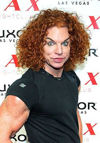 Plastic surgery mishaps | Carrot Top Rumored procedures: brow lift, Botox, chemical peels and ...