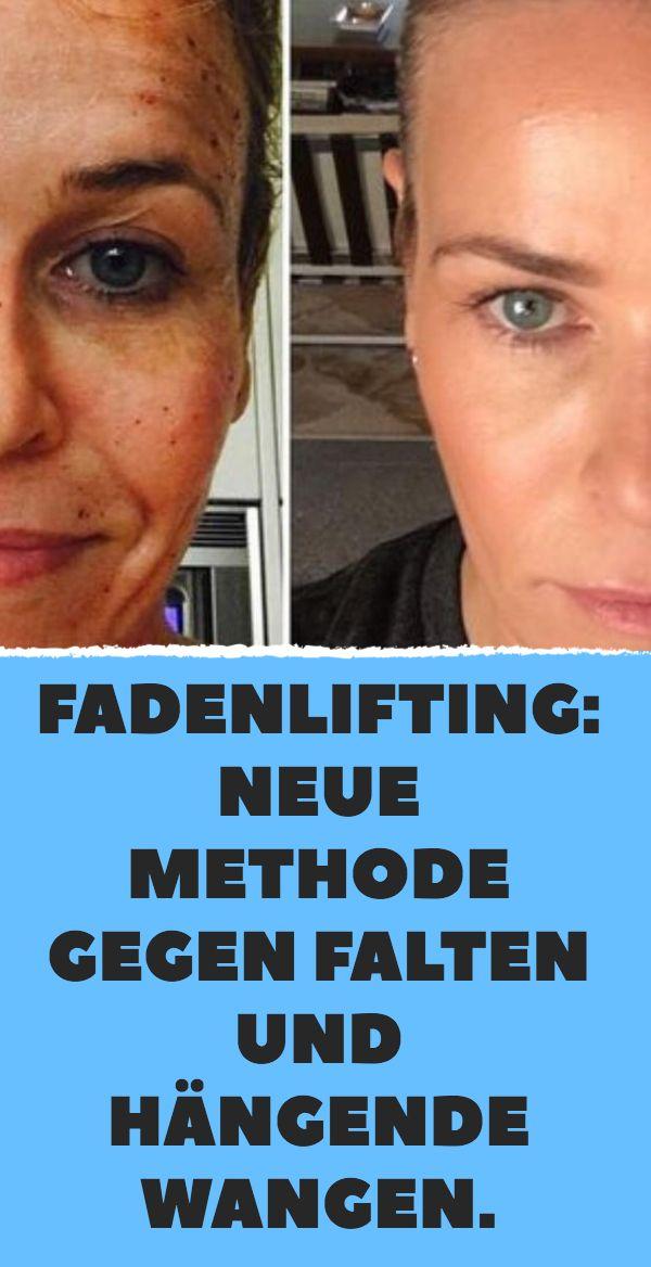 Thread Lifting: Neue Methode gegen Falten und hängende Wangen. – Beauty