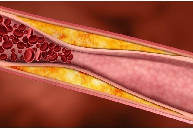 Inchaço numa perna pode ser Sintoma de Trombose