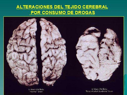 La alteracion del tejido cerebral es una consecuencia del consumo de drogas.