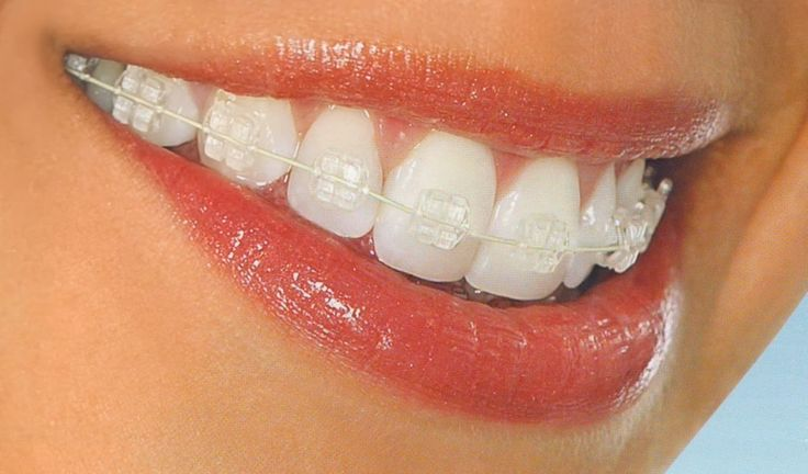 Finishing a 5-year Bachelor of Dental Surgery degree, orthodontists in Melbourne are additionally required to finish a 3-year Masters Degree/Doctorate in Orthodontics. Dentists at the Gowerst dental clinic are expert and experienced in orthodontic dentistry.