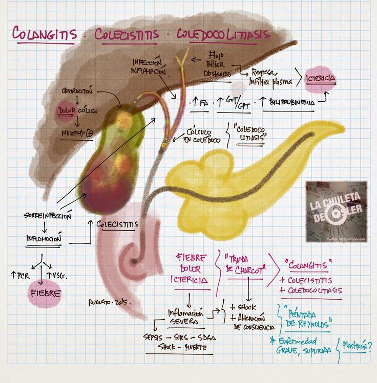 Colangitis, colecistitis, coledocolitiasis // La Chuleta de Osler: Gastroenterología - Enfermedades de la vía biliar y pancreatitis aguda