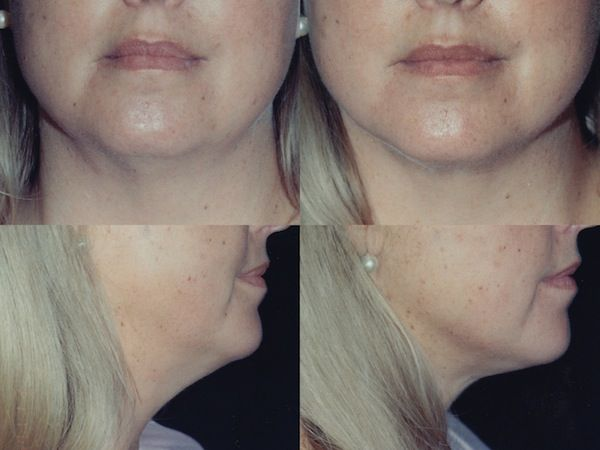 Neck Liposuction Before and After Photos by Dr. Mark Anton. For more plastic surgery before and after pictures please visit http://www.antonaesthetics.com/neck-liposuction-photo-gallery/ #plasticsurgery #neck