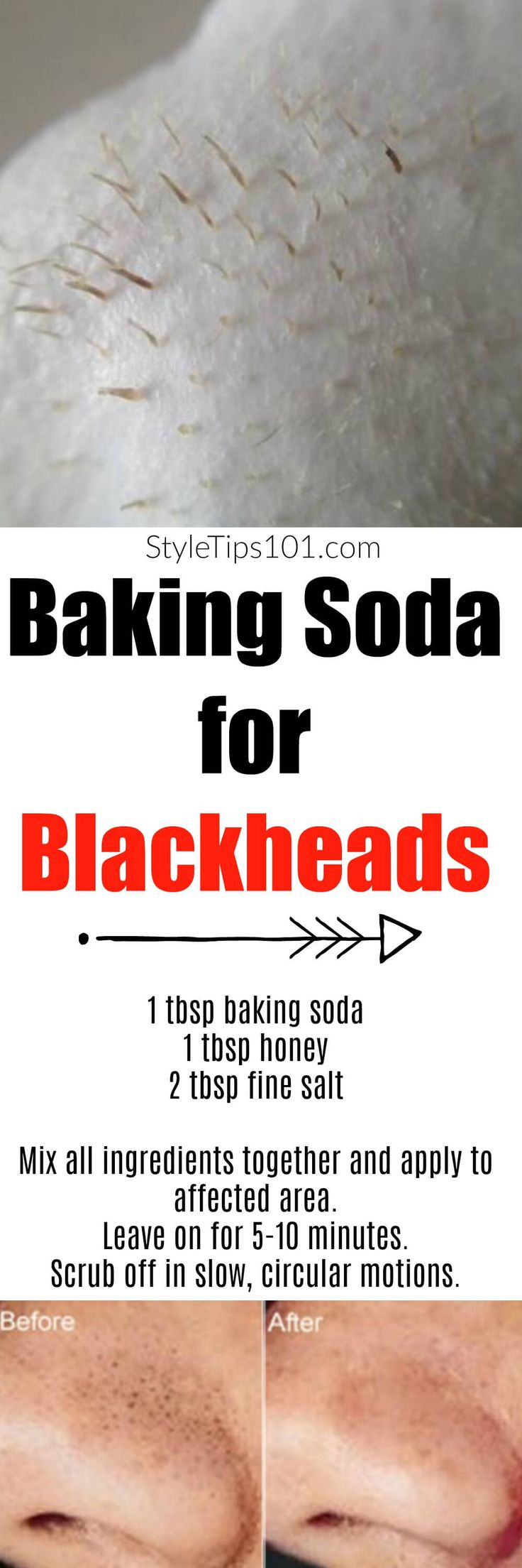 Have you ever used baking soda for blackheads? If not, you're going to love this anti-blackhead mask which is more effective than any other treatment! via @styletips1o1
