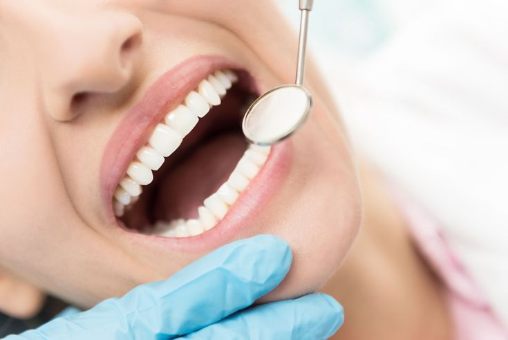 Why Treat Overlapping Teeth?
