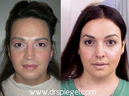 Gender transition surgery-8868