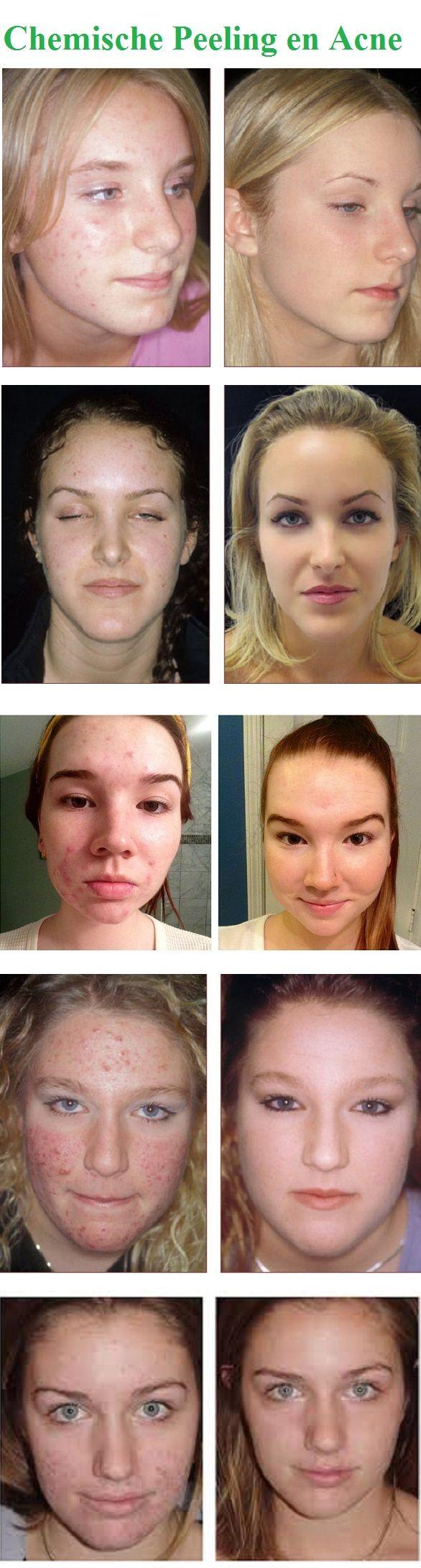 Een techniek die speciaal is ontwikkeld om acne, acnelittekens en andere ongewenste huidaandoeningen te verminderen is de fruitzuur of chemische peeling. Afhankelijk van de ernst van de acne klachten wordt gebruikt gemaakt van glycolzuur, salicylzuur, melkzuur, resorcinol, trichloorazijnzuur