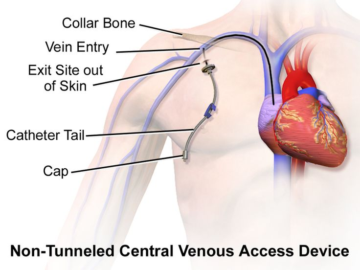 Catheter Central Venous Access Device Non-Tunneled