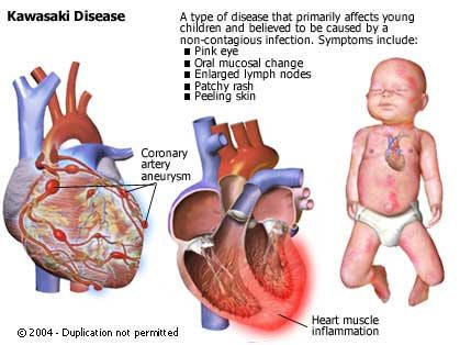 Kawasaki disease often begins with a high and persistent fever greater than 102°F, often as high as 104°F. A persistent fever lasting at least 5 days is considered a classic sign. The fever may last for up to 2weeks and does not usually go away with normal doses of acetaminophen (Tylenol) or ibuprofen.