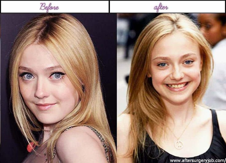 Famous people before and after surgery