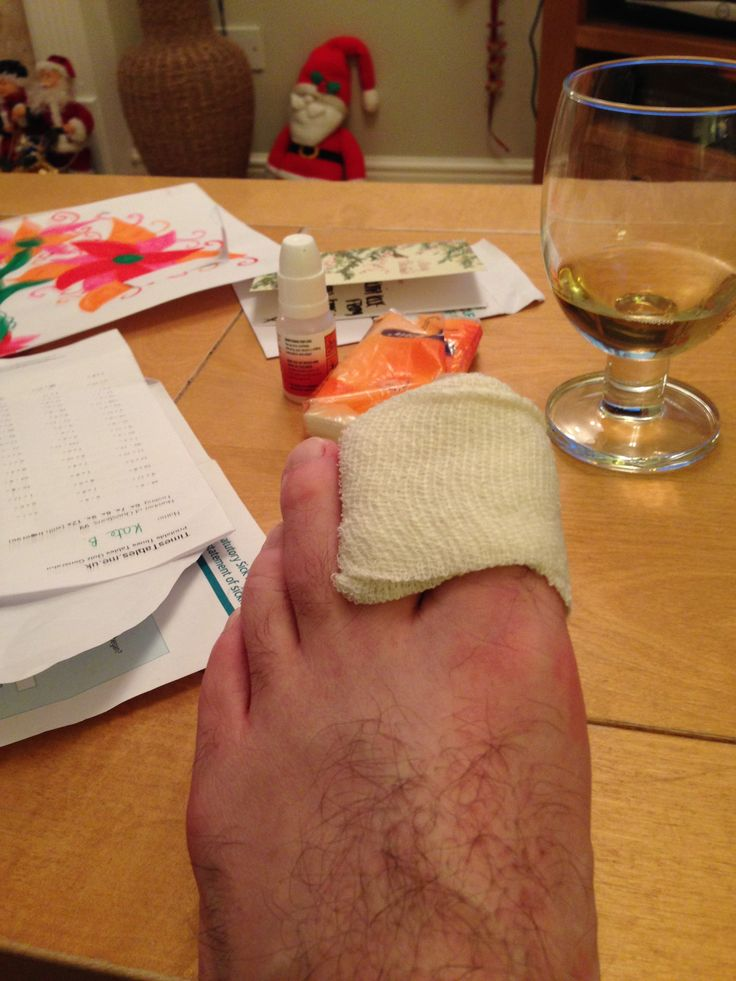 A broken big toe,on black eyed Friday,beat that!..how rude