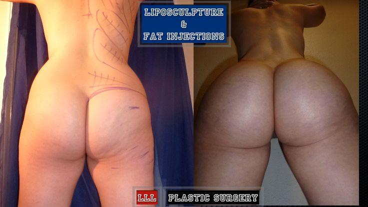 New York City Brazilian Butt Lift Manhattan Surgical Care