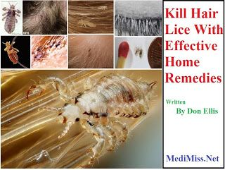Kill Hair Lice With Effective Home Remedies