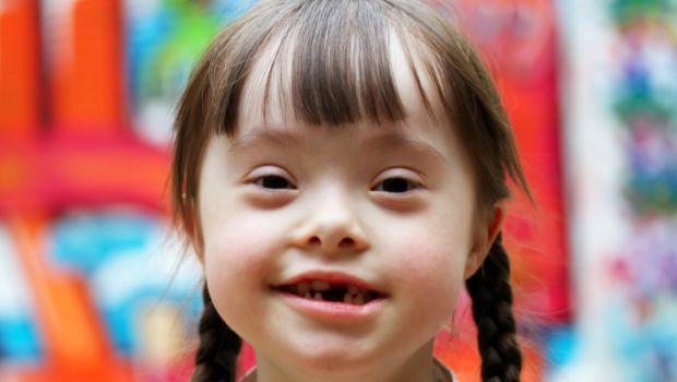 Down Syndrome: The Causes and Symptoms of This Genetic Disorder