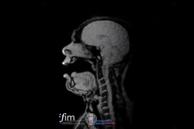 Incredible MRI Images Show What An Opera Singer Looks Like On The Inside While Singing | IFLScience