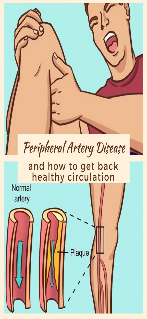 What Is The Best Diet If You Have Peripheral Artery Disease (PAD)?