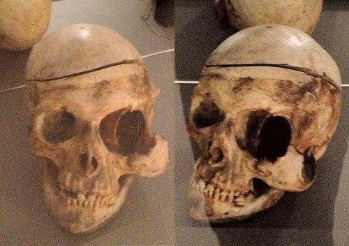 The skull of a man who had been kicked by a horse. This caused a swelling which slowly increased in size; his left eyeball and the jawbone were gradually squeezed outwards. Eventually, the swelling started leaking and began to stink. After 21 years of suffering from the swelling, the man died in 1771. Bones grow in response to the forces exerted on them – Wolff's Law.