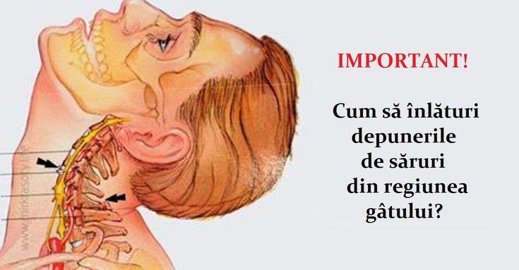 Depunerile de săruri în regiunea gâtului poartă numele de osteocondroză cervicală. Pentru că regiunea cervicală este o parte importantă a corpului, dereglările în acest segment provoacă tulburări serioase în întreg organismul. Zona gâtului este locul în care se găsesc vasele sanguine și nervii, ce alimentează țesuturile gâtului, feței și craniului. În plus, din cauza presiunii asupra terminațiilor nervoase încep dureri de cap, amorțeli ale membrelor, slăbiciune musculară, oboseală, etc…