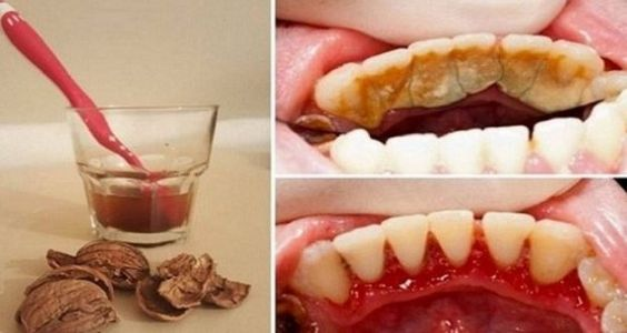 Get Rid of Tooth Plaque, Tartar and Bleeding Gums in a Very Simple And Easy Way Without Pain - eHealthyFood